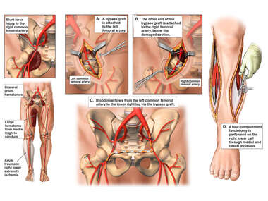 Crush Injuries with Femoral to Femoral Artery Bypass