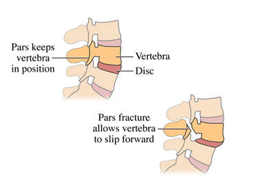 Spine Injury - Pars Defect and Spondylolisthesis