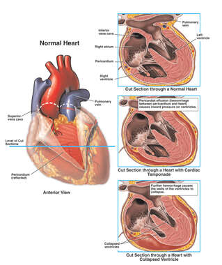 Cardiac Tamponade with Ventricular Collapse