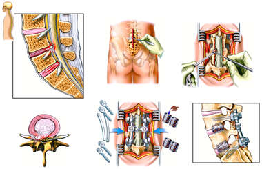 Back Surgery - L4-5 and L5-S1 Laminectomy, Discectomy and Spinal Fusion