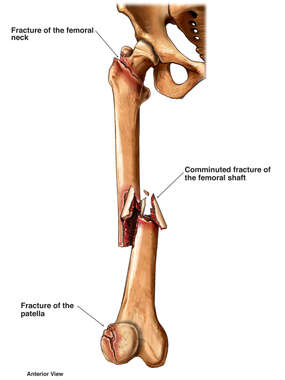 Right Leg Pre-operative Mid-Shaft Femur Fractures