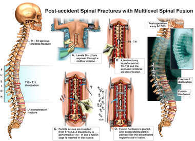 Post-accident Spinal Fractures with Multilevel Spinal Fusion T7-L2