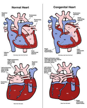 Congenital Heart Anomalies in the Newborn