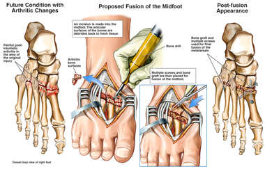 Future Arthritic Changes with Proposed Fusion of the Right Mid-Foot