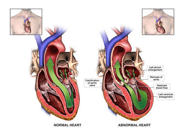 Critical Aortic Stenosis