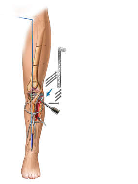 Tibial Plate and Fracture Fixation