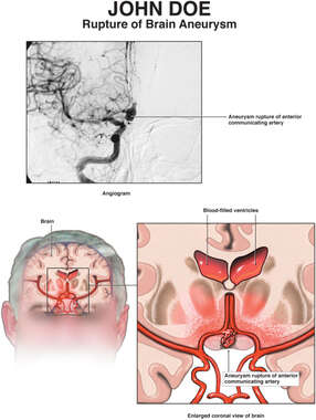 Rupture of Brain Aneurysm