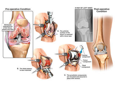 Left Total Knee Replacement