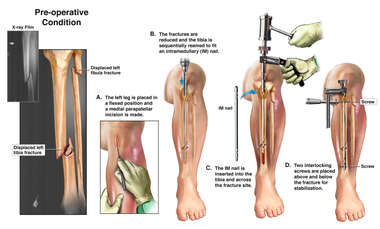 Lower Leg Fracture Fixation