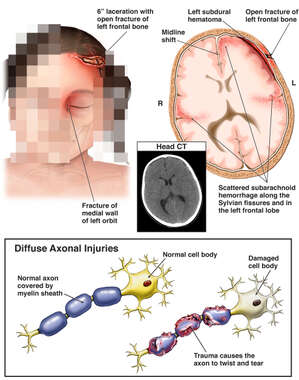 Scalp Laceration and Brain Injury with Damage to the Axons