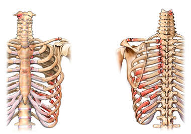 Front and Back Skeletal Views with Multiple Post-accident Thoracic Ribcage and Spinal Fractures