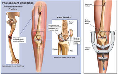 Left Leg Injuries with Application of Surgical Traction
