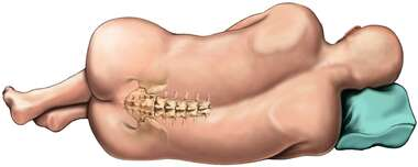 Figure Lying Down: Lumbar Orientation