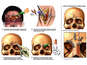 Surgical Fixation of Post-accident Facial Fractures