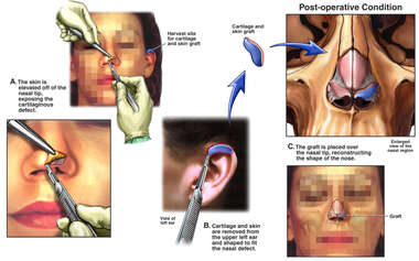 Asymmetry of the Nasal Tip with Cartilage Graft and Reconstruction