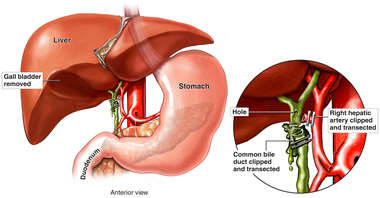 Cholecystectomy Procedure