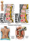 Lumbar Spine Injuries with Surgery