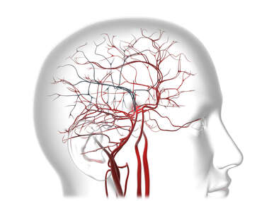 Occlusion Cerebral Arteries / Stroke