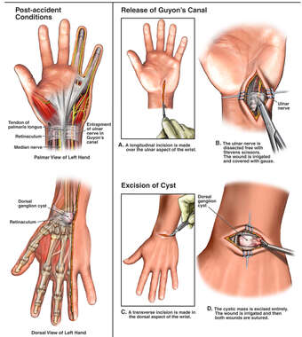 Left Dorsal Wrist Mass and Ulnar Nerve Entrapment with Surgical Repairs