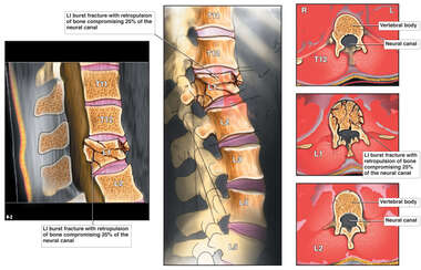 Pre-operative Condition with Lumbar Spine Fractures