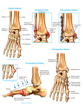 Traumatic Injury to the Foot and Ankle with Surgical Fixation