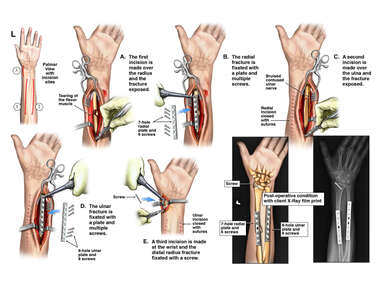 Surgical Fixation of Left Arm Fractures