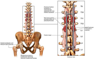 Post-fixation Condition of T12 and L1 vertebrae
