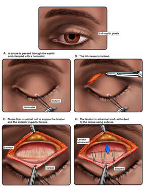 Ptosis and External Levator Advancement Reattachment of Left Upper Lid