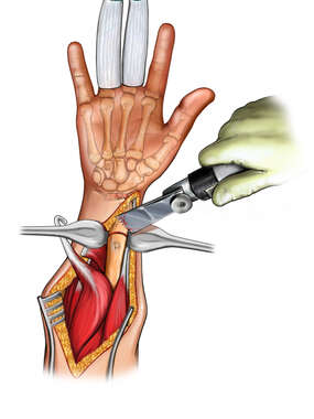 Wrist Surgery and Osteotomy