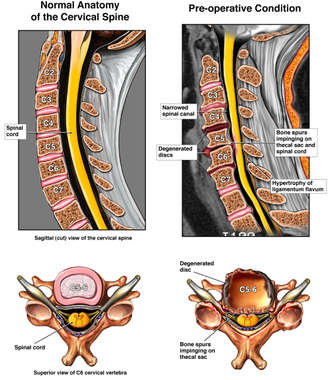 Multilevel Pre-operative Cervical Spine Pathologies