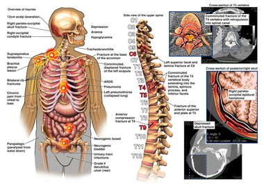 Male Torso with Post-accident Injuries to the Head, Brain, Thorax, Abdomen, and Spine