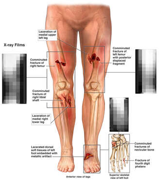 Lower Body Injuries