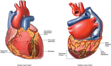 Regions of Heart Damage and Procedures