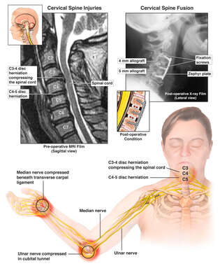 Cervical Spine and Nerve Injuries