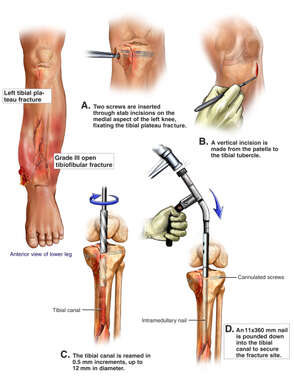 Left Tibial and Fibular Fractures with Surgical Placement of an Intramedullary Rod and Screws