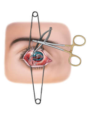 Eye Laceration Repair