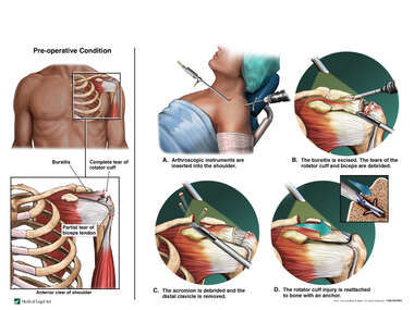 Left Shoulder Injuries with Arthroscopic Repairs