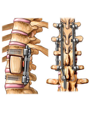 3/4 and Posterior Views of the Post-operative Condition of the Thoraco-Lumbar Spine