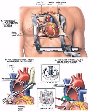 Aortic Valve Replacement Procedure