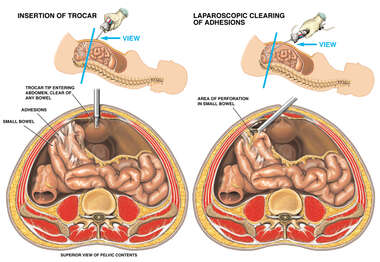 Laparoscopic Procedure to Remove Bowel Adhesions