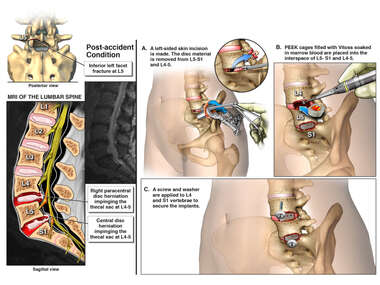Lumbar Spine Injury with Anterior Lumbar Surgical Fusion