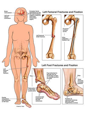 Female Figure with Orthopedic Injuries and Surgical Repairs to the Left Femur and Foot