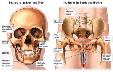 Male with Post-accident Injuries to the Skull, Pelvis, Bladder and Penis