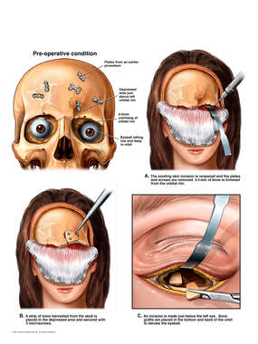 Deformity of the Forehead and Orbit with Surgical Reconstruction