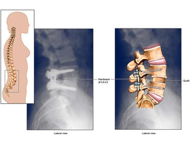 Post-operative X-ray of Lumbar Disc Herniation Repair