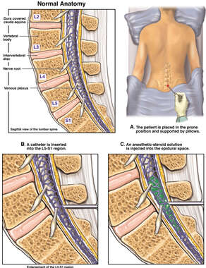 Lumbar Epidural Steroid Injection