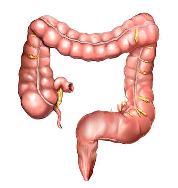 Anatomy of the Colon (Large Intestine)
