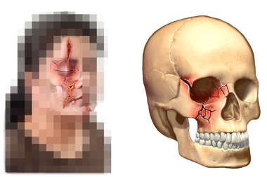 Female Face and Skull with Multiple Lacerations and Facial Fractures