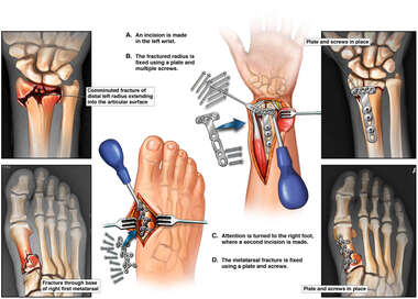Open Reduction Internal Fixation of Left Wrist and Right Toe Fractures