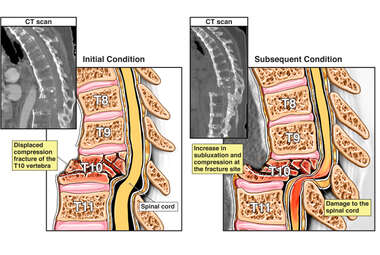 Worsening of Spinal Fracture with Resulting Spinal Cord Damage